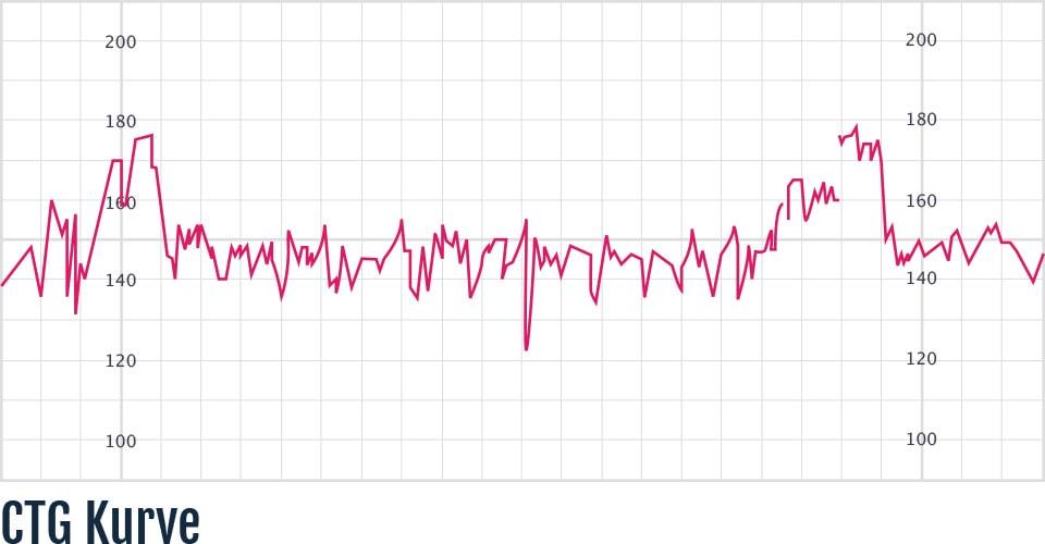 Beispiel einer CTG-Kurve inklusive Auswertung.